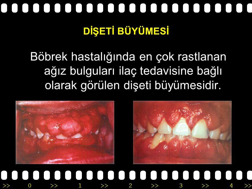 >>0 >>1 >> 2 >> 3 >> 4 >> Böbrek hastalarında en çok rastlanan ağız- diş bulguları : Dişeti büyümesi Diş eti – yumuşak doku hastalıkları Ağız kuruluğu Ağız kokusu – kötü tat Ağız içi lezyonlar Dişsel bozukluklar