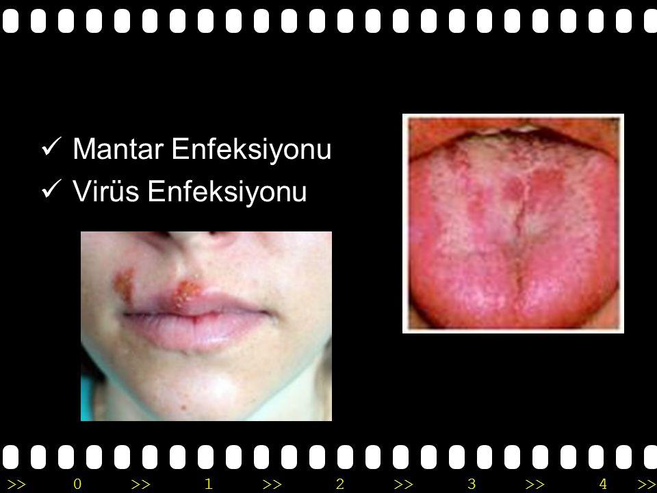 >>0 >>1 >> 2 >> 3 >> 4 >> AĞIZ İÇİ LEZYONLAR Hemodiyaliz hastaları ve böbrek nakli geçirmiş bireylerin oldukça büyük bir kısmında özellikle beyaz lekeler ve aftlar halinde ağız içi lezyonlar saptanmıştır
