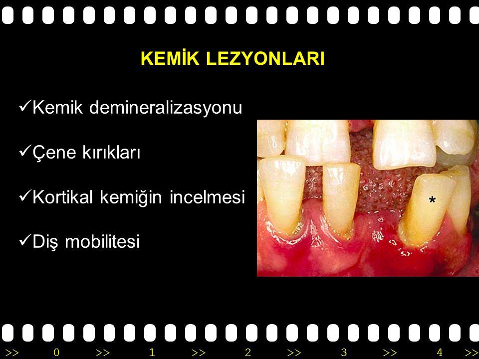 >>0 >>1 >> 2 >> 3 >> 4 >> Diş yapısında bozukluk Yetişkin hastalarda pulpa odasında daralma veya kalsifikasyonlar izlenmektedir.