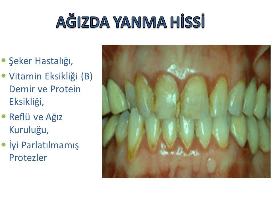Şeker Hastalığı, Vitamin Eksikliği (B) Demir ve Protein Eksikliği, Reflü ve Ağız Kuruluğu, İyi Parlatılmamış Protezler
