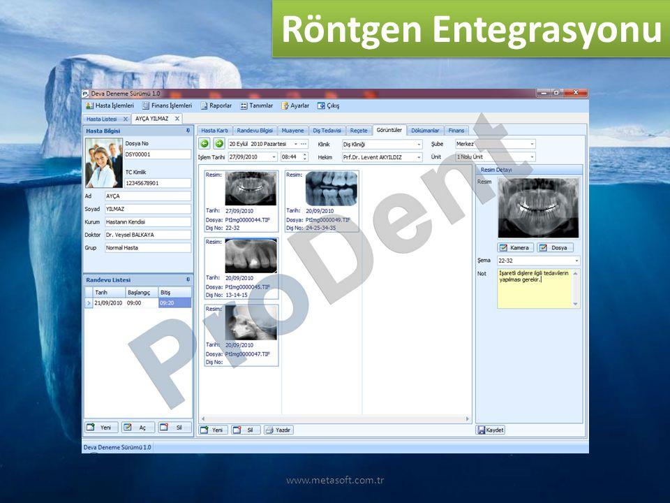 www.metasoft.com.tr Röntgen Entegrasyonu