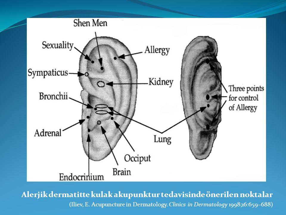 Alerjik dermatitte kulak akupunktur tedavisinde önerilen noktalar (Iliev, E. Acupuncture in Dermatology. Clinics in Dermatology 1998;16:659–688)