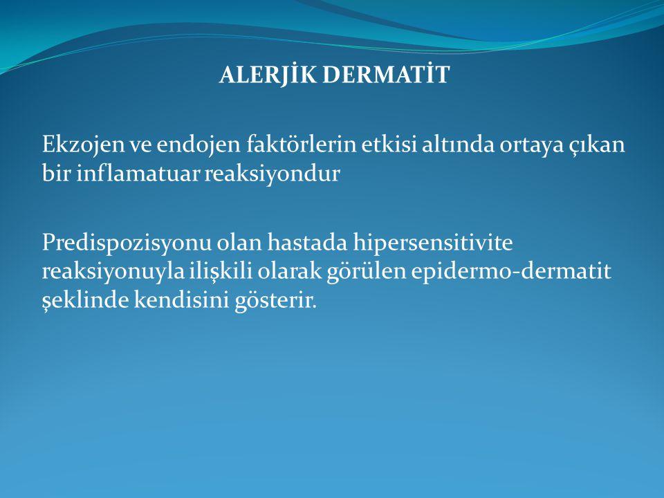 ALERJİK KONJUNKTİVİT 1.