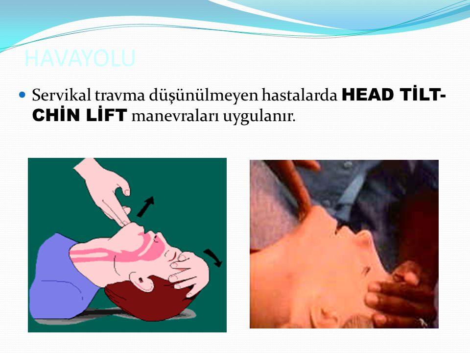 Servikal travma düşünülmeyen hastalarda HEAD TİLT- CHİN LİFT manevraları uygulanır.