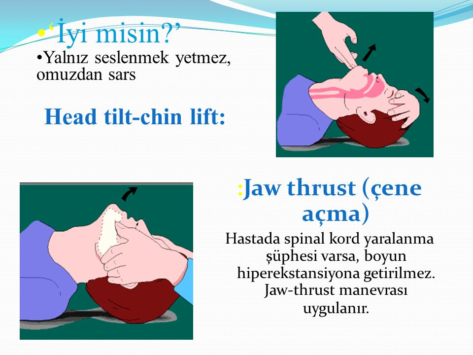 :Jaw thrust (çene açma) Hastada spinal kord yaralanma şüphesi varsa, boyun hiperekstansiyona getirilmez. Jaw-thrust manevrası uygulanır. Head tilt-chi