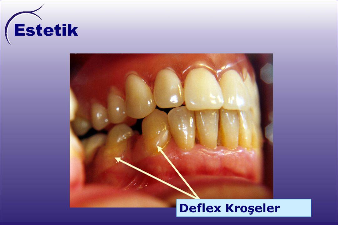 Estetik Materyalin mükemmel yarışeffaf özelliği, altındaki doku renginin gözlenebilmesine olanak verir. Böylece, Deflex ile yapılan kroşeler dental ve