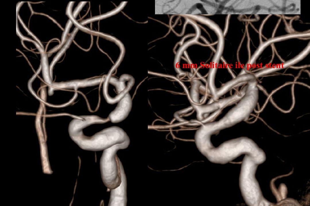 6 mm Solitaire ile post stent