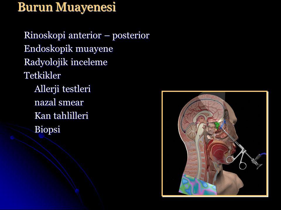 Rinoskopi anterior – posterior Endoskopik muayene Radyolojik inceleme Tetkikler Allerji testleri nazal smear Kan tahlilleri Biopsi Burun Muayenesi