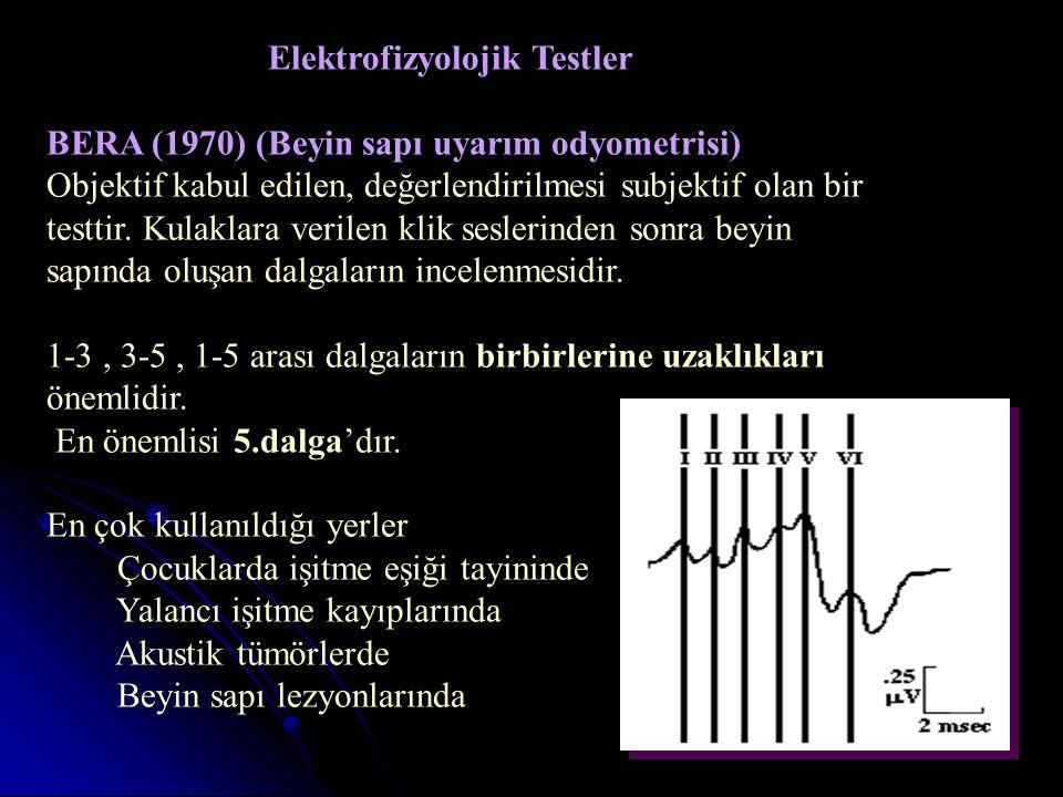 Elektrofizyolojik Testler BERA (1970) (Beyin sapı uyarım odyometrisi) Objektif kabul edilen, değerlendirilmesi subjektif olan bir testtir.