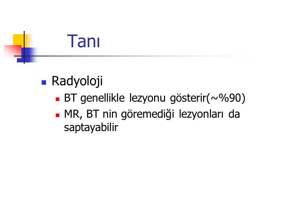 Tanı Radyoloji BT genellikle lezyonu gösterir(~%90) MR, BT nin göremediği lezyonları da saptayabilir