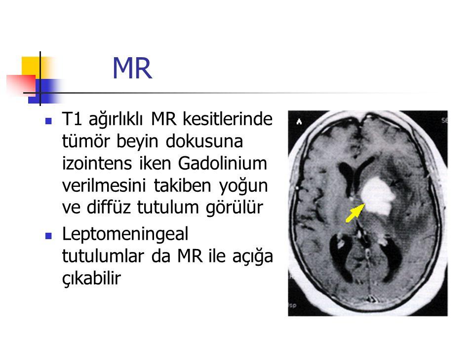 MR T1 ağırlıklı MR kesitlerinde tümör beyin dokusuna izointens iken Gadolinium verilmesini takiben yoğun ve diffüz tutulum görülür Leptomeningeal tutu
