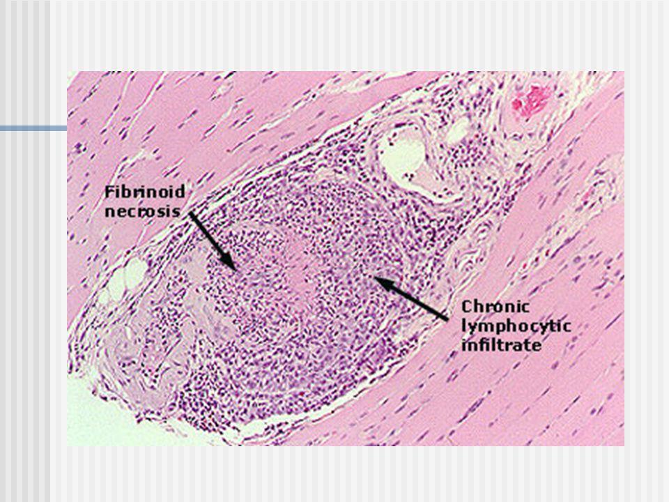 WEGENER GRANULAMOTOZU Küçük ve orta çaplı damarlarda nekrotizan vaskülit (nekrotizan glomerülonefrit) ile birlikte solunum yollarında granülomatöz inflamasyonla karakterize bir hastalıktır.