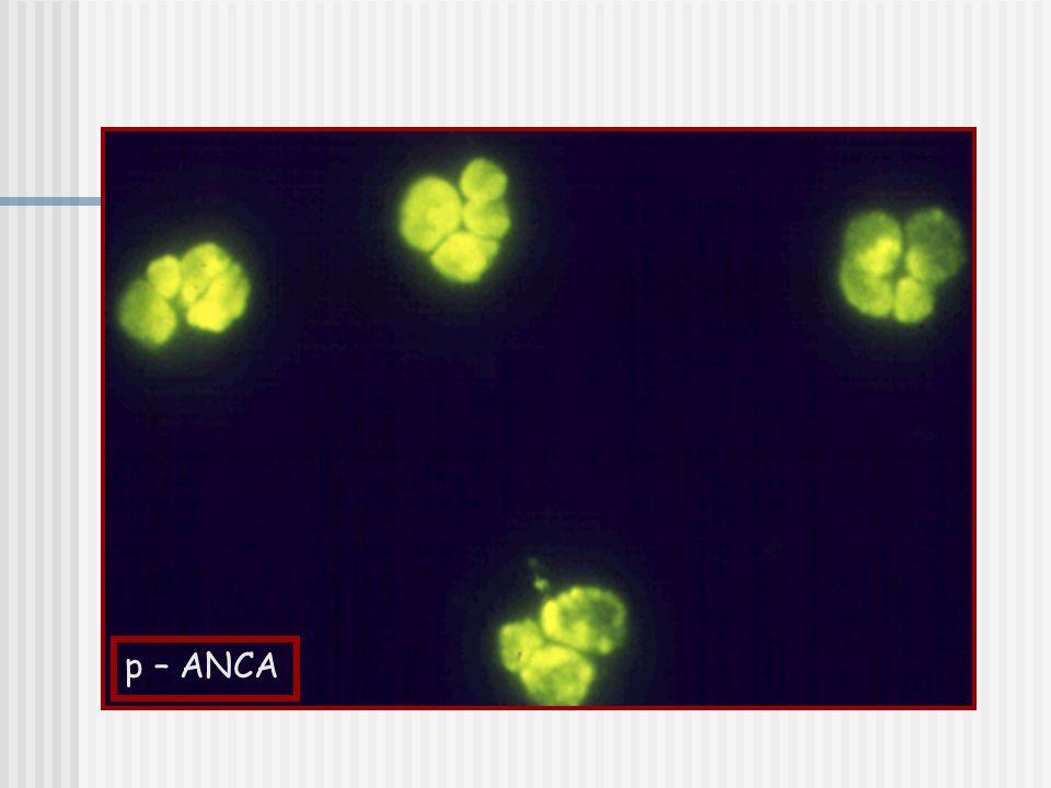 SİSTEMİK VASKÜLİTLER PRİMER SEKONDER Büyük/ orta çaplı damarlar Takayasu arteriti Dev hücreli arterit SSS primer anjiitisi Orta/ küçük çaplı damarlar Poliarteritis Nodosa (PAN) Churg- Strauss Sendromu Wegener Granülomatozu Küçük çaplı damarlar Henoch- Schönlein vasküliti Çeşitli patolojiler Behçet Sendromu Kawasaki Hastalığı Cogan Sendromu Buerger Hastalığı Bağ dokusu hastalı k larına ikincil Vaskülitler (SLE, RA, Sjögren sendromu, skleroderma) Antifosfolipid antikor sendromu Esansiyel mikst kriyoglobulinemi Enfeksiyöz vaskülitler Malignite ile ilgili vaskülit İlaç aşırı duyarlılık vasküliti Organ transplantasyonu sonrası gelişen vaskülit Endokardit Arteriyel miksoma
