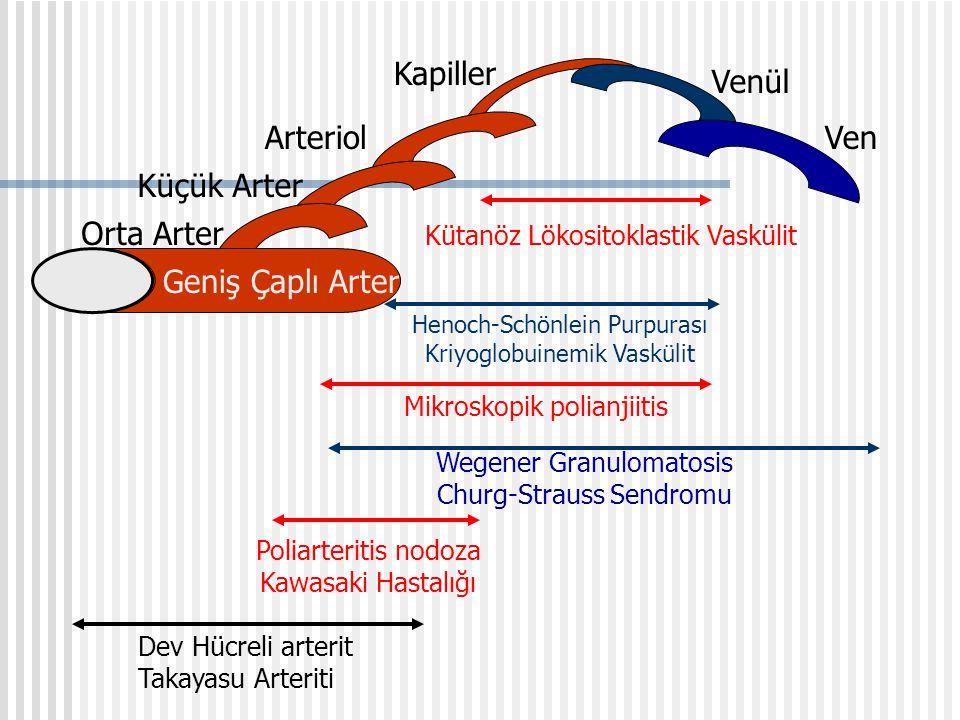 TANI- PAN ANJİYOGRAFİ Serebral, renal, çölyak arterlerde segmental daralma, mikroanevrizma Başlangıçta N Birkaç hf/ ayda segmental daralma p-ANCA(+): %20, c-ANCA (+): %10 Faktör VIII related antigen