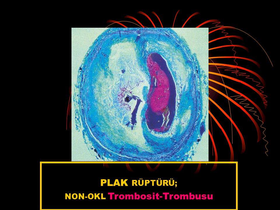 PLAK RÜPTÜRÜ; NON-OKL Trombosit-Trombusu