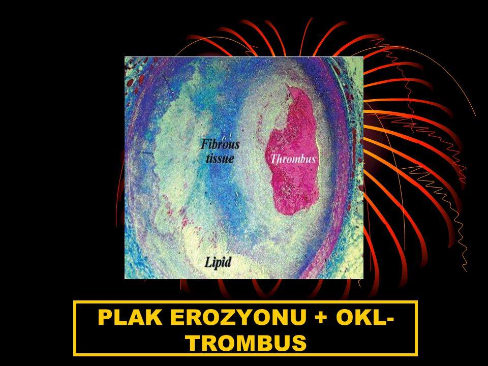 PLAK EROZYONU + OKL- TROMBUS
