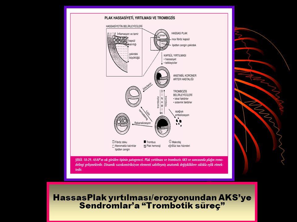 """HassasPlak yırtılması/erozyonundan AKS'ye Sendromlar'a """"Trombotik süreç"""""""