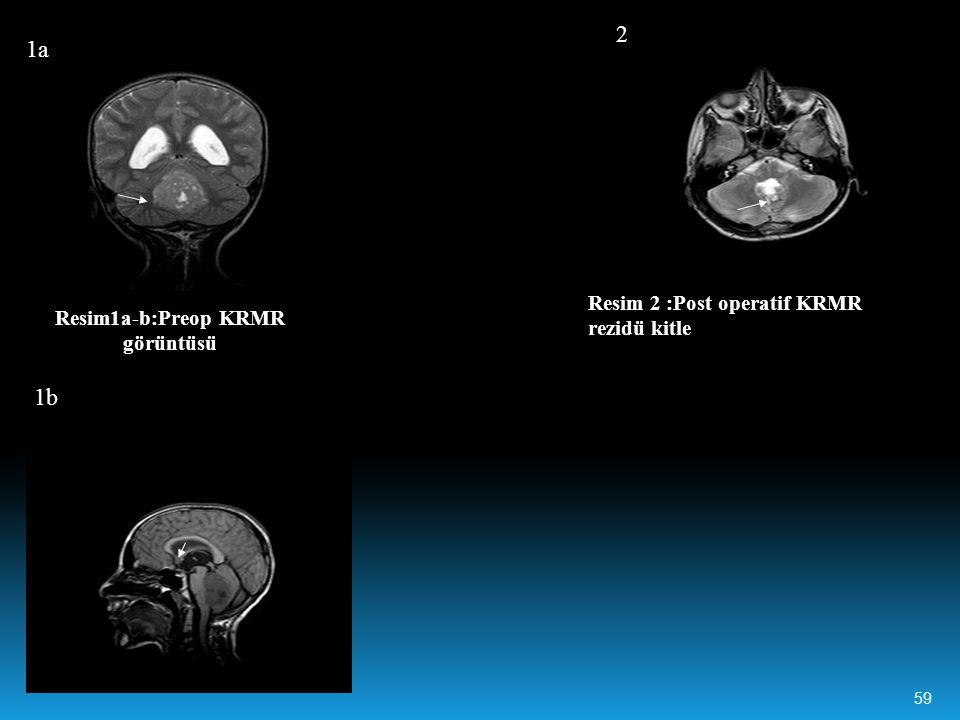 Resim1a-b:Preop KRMR görüntüsü 1a 1b Resim 2 :Post operatif KRMR rezidü kitle 2 59