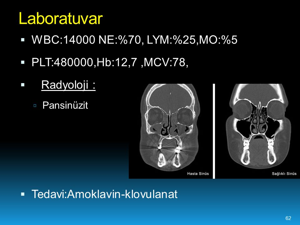  WBC:14000 NE:%70, LYM:%25,MO:%5  PLT:480000,Hb:12,7,MCV:78,  Radyoloji :  Pansinüzit  Tedavi:Amoklavin-klovulanat Laboratuvar 62