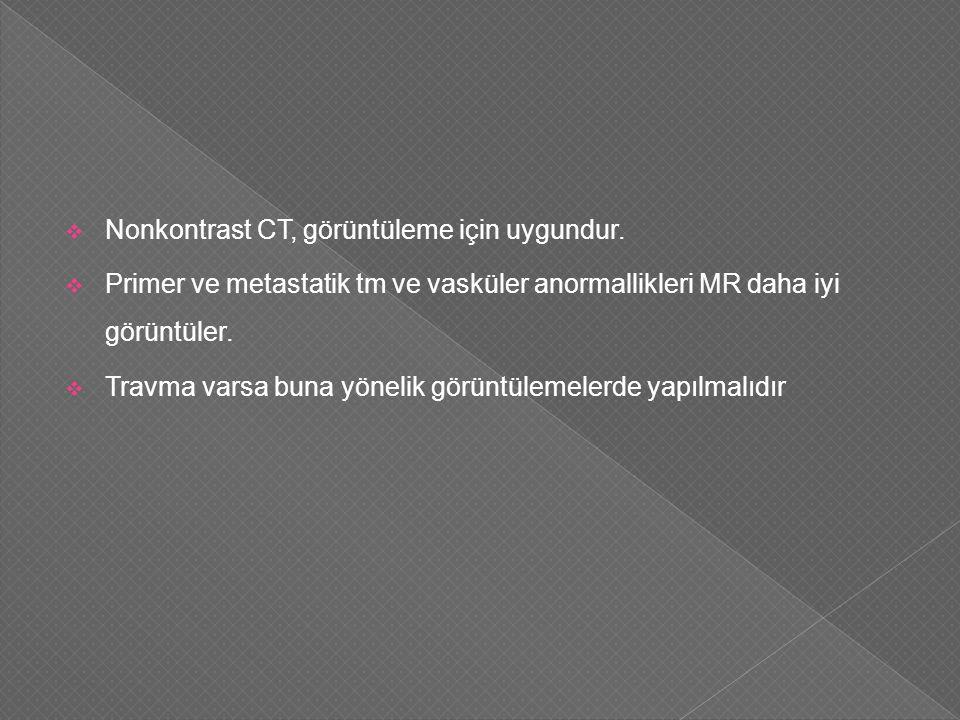  Nonkontrast CT, görüntüleme için uygundur.