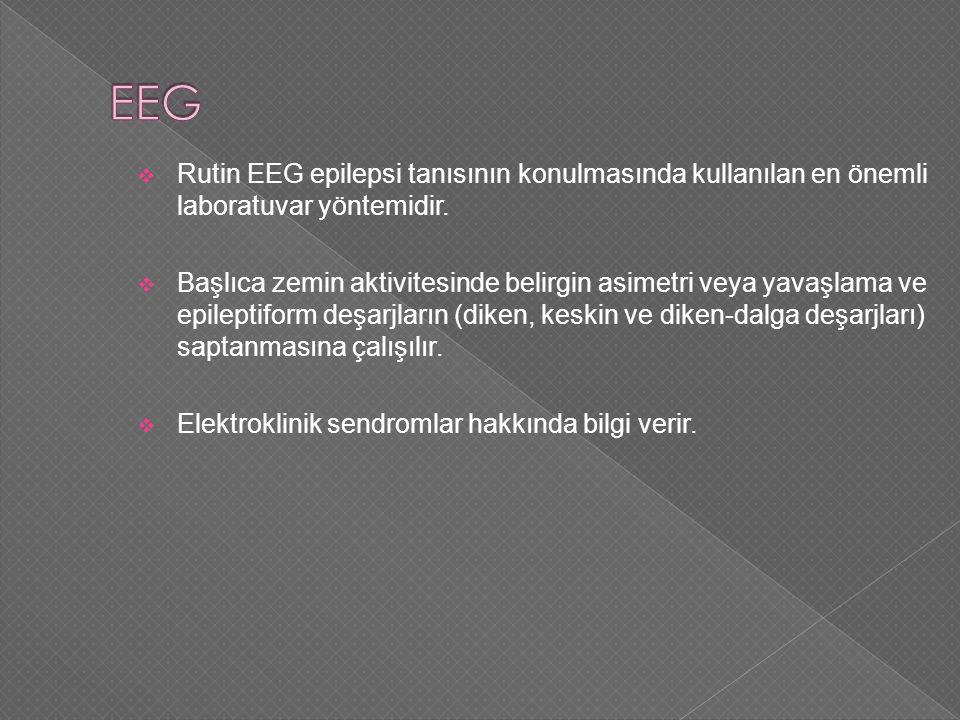  Rutin EEG epilepsi tanısının konulmasında kullanılan en önemli laboratuvar yöntemidir.