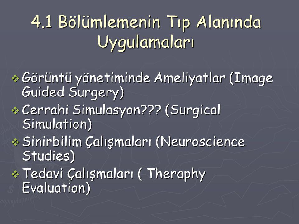 4.1 Bölümlemenin Tıp Alanında Uygulamaları  Görüntü yönetiminde Ameliyatlar (Image Guided Surgery)  Cerrahi Simulasyon??.