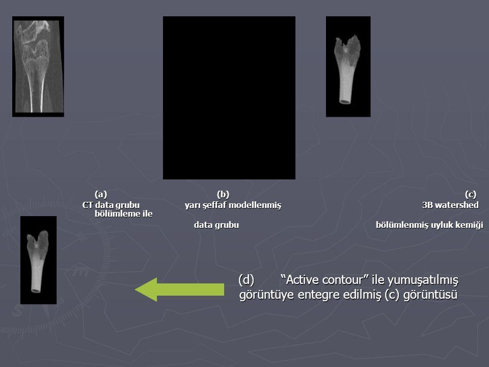 (d) Active contour ile yumuşatılmış görüntüye entegre edilmiş (c) görüntüsü (a) (b) (c) CT data grubu yarı şeffaf modellenmiş 3B watershed bölümleme ile data grububölümlenmiş uyluk kemiği data grububölümlenmiş uyluk kemiği