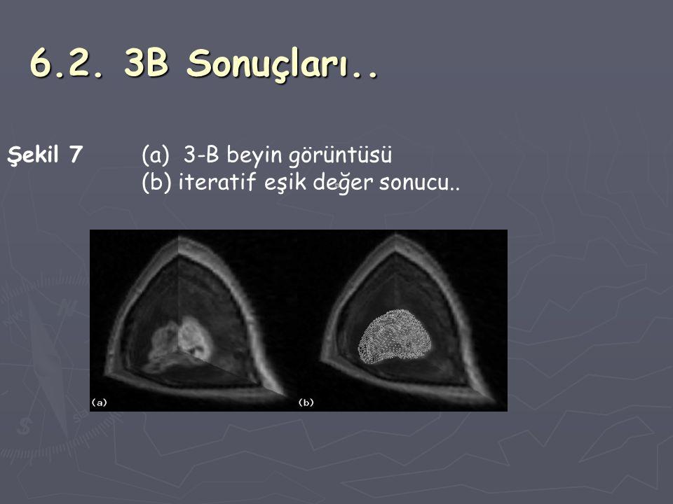 6.2. 3B Sonuçları.. Şekil 7 (a) 3-B beyin görüntüsü (b) iteratif eşik değer sonucu..