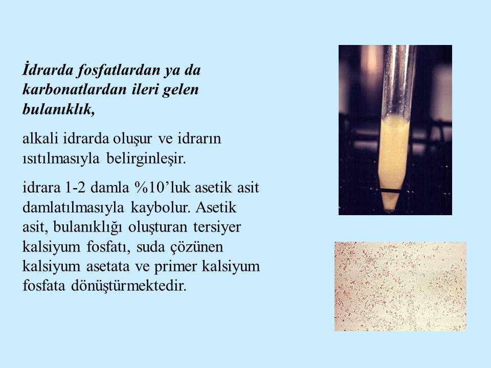 İdrarda fosfatlardan ya da karbonatlardan ileri gelen bulanıklık, alkali idrarda oluşur ve idrarın ısıtılmasıyla belirginleşir.