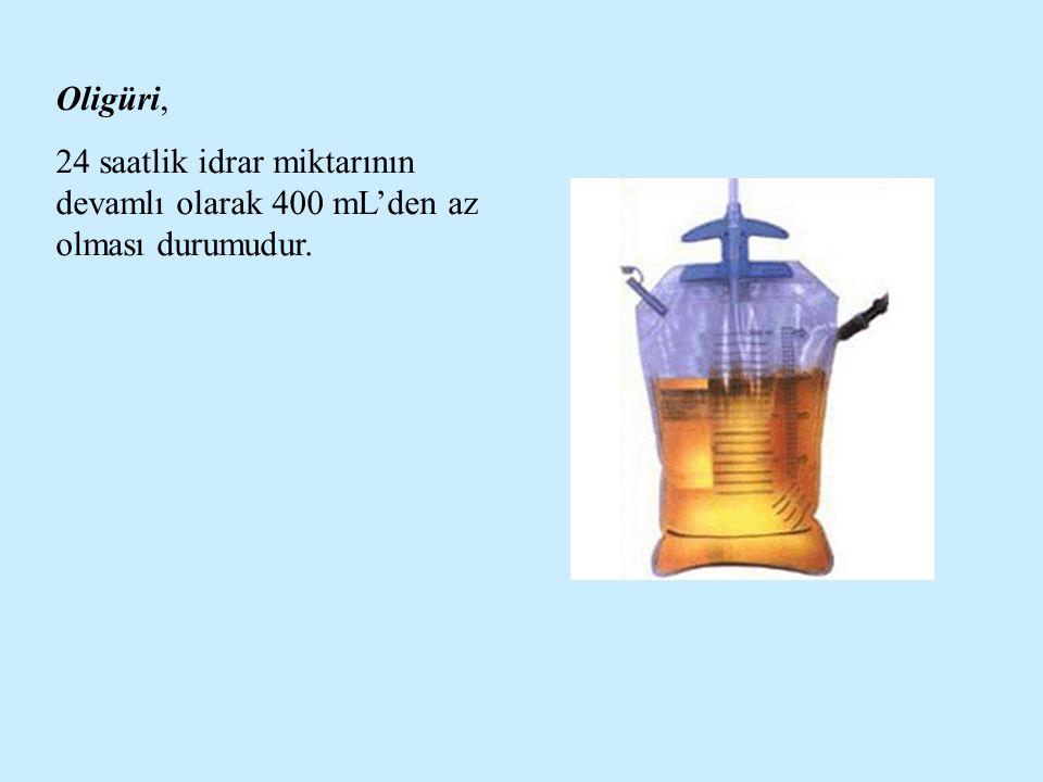 Oligüri, 24 saatlik idrar miktarının devamlı olarak 400 mL'den az olması durumudur.