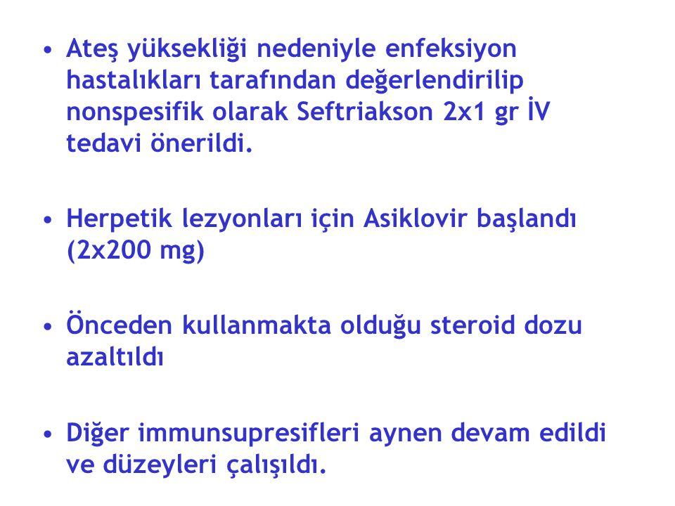 Ateş yüksekliği nedeniyle enfeksiyon hastalıkları tarafından değerlendirilip nonspesifik olarak Seftriakson 2x1 gr İV tedavi önerildi.