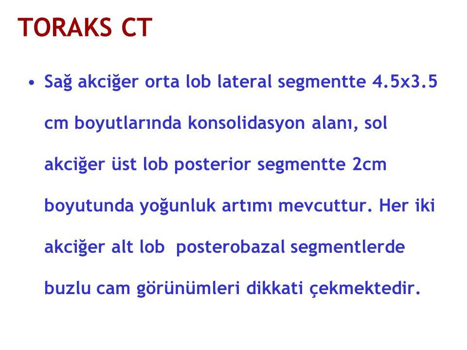 TORAKS CT Sağ akciğer orta lob lateral segmentte 4.5x3.5 cm boyutlarında konsolidasyon alanı, sol akciğer üst lob posterior segmentte 2cm boyutunda yoğunluk artımı mevcuttur.
