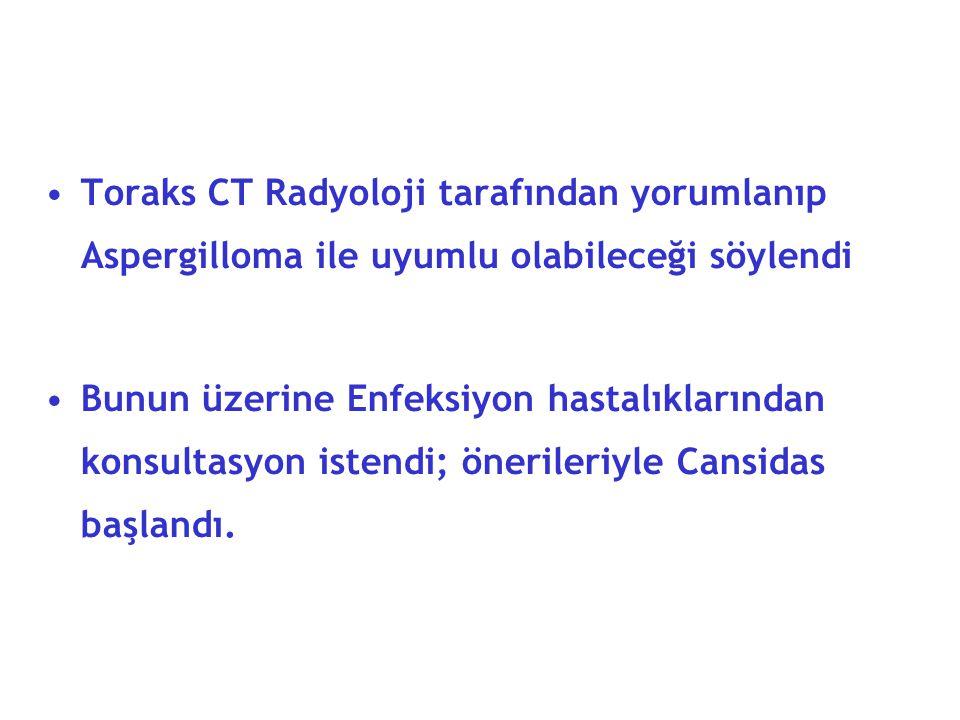 Toraks CT Radyoloji tarafından yorumlanıp Aspergilloma ile uyumlu olabileceği söylendi Bunun üzerine Enfeksiyon hastalıklarından konsultasyon istendi; önerileriyle Cansidas başlandı.