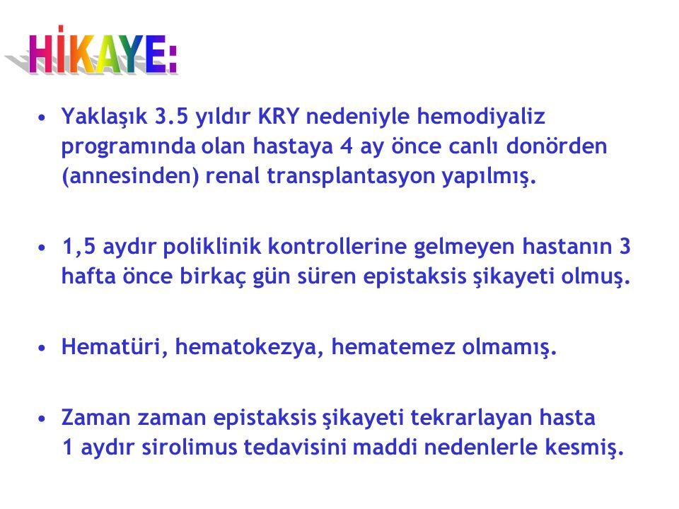 Viral Markerlar HBs Ag: Negatif Anti HBc IgM: Negatif Anti HCV: Negatif Anti HIV Ag/ Ab: Negatif CMV IgG: Pozitif CMV IgM: Negatif Herpes IgG: Pozitif Herpes IgM: Negatif
