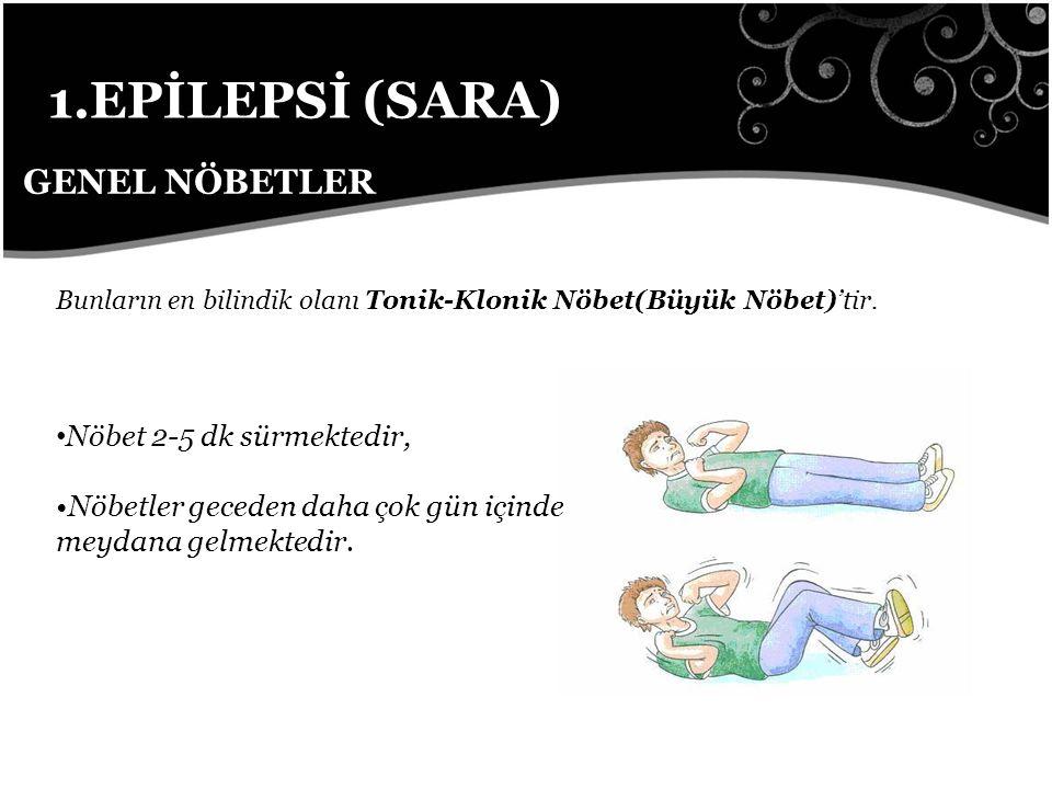 1.EPİLEPSİ (SARA) GENEL NÖBETLER Bunların en bilindik olanı Tonik-Klonik Nöbet(Büyük Nöbet)'tir.