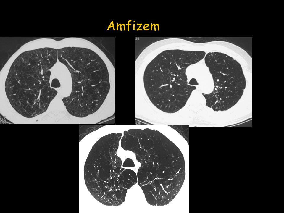 A-anevrizma B-bronkojenik kist C-lenfadenomegali D-plonjan guatr E-timus
