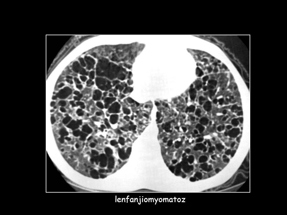 55 Y kadın hasta 3 ay önce kapak ameliyatı Hemoptizi yakınması (+)