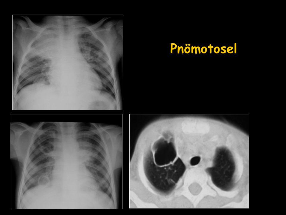 Sol akciğer üst lob apikoposterior segmentte artmış FDG tutulum odağı –Sağ akciğer alt lob posterobazal segmentte artmış FDG tutulum odağı (SUDmax:6.5) görülmüştür.