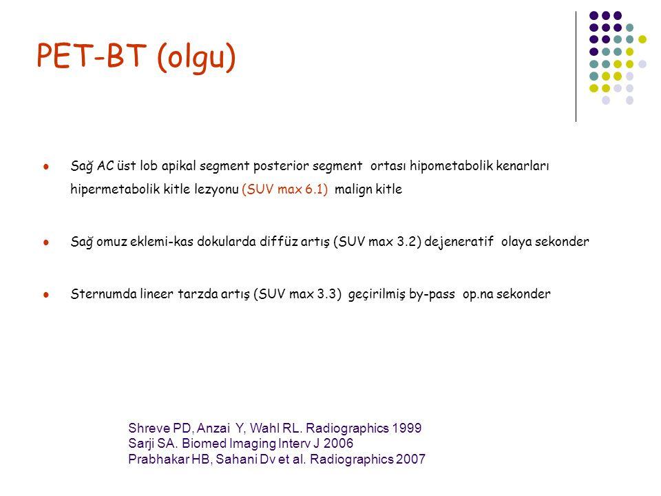 PET-BT (olgu) Sağ AC üst lob apikal segment posterior segment ortası hipometabolik kenarları hipermetabolik kitle lezyonu (SUV max 6.1) malign kitle S