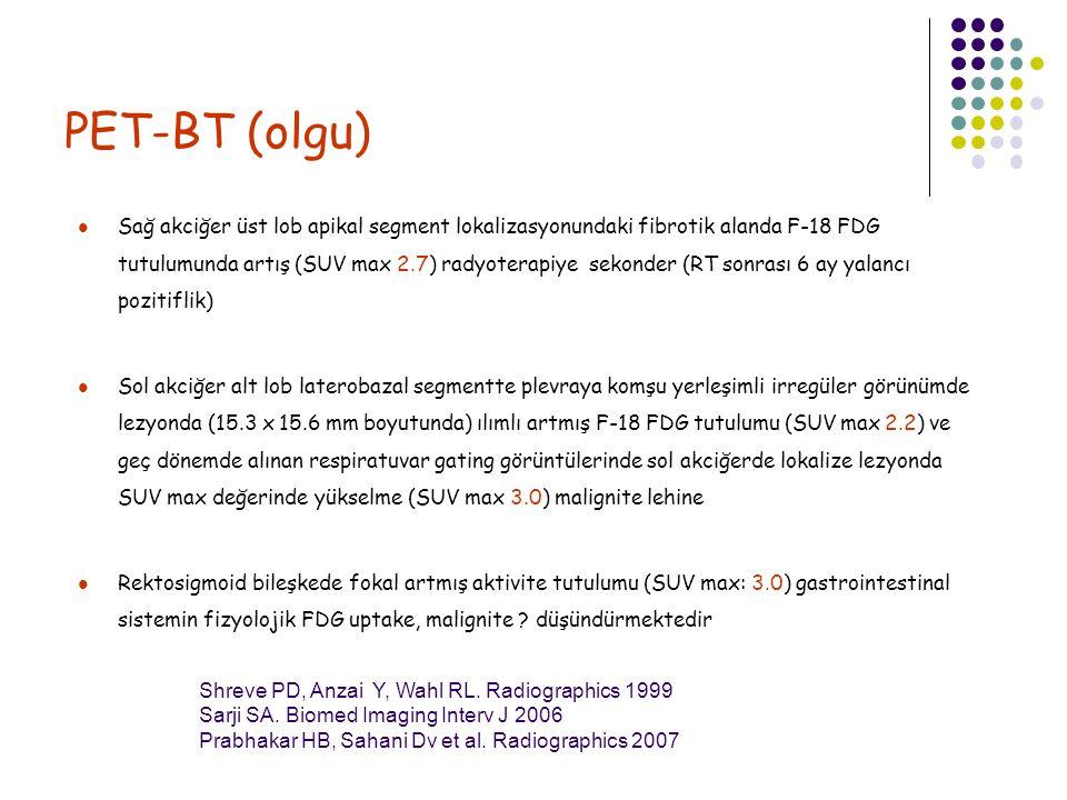 PET-BT (olgu) Sağ akciğer üst lob apikal segment lokalizasyonundaki fibrotik alanda F-18 FDG tutulumunda artış (SUV max 2.7) radyoterapiye sekonder (R