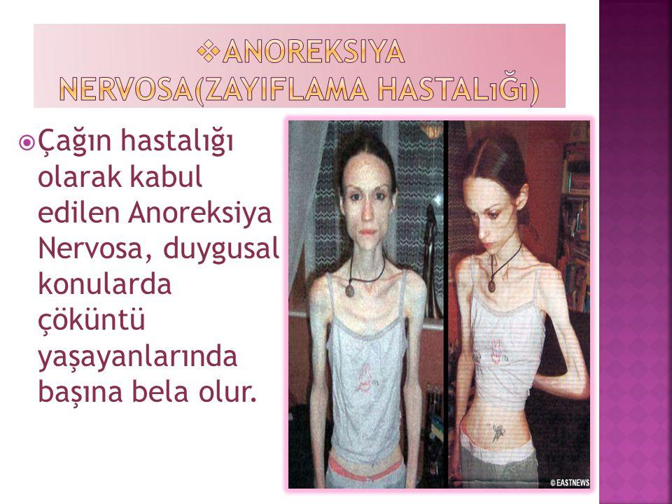  Çağın hastalığı olarak kabul edilen Anoreksiya Nervosa, duygusal konularda çöküntü yaşayanlarında başına bela olur.