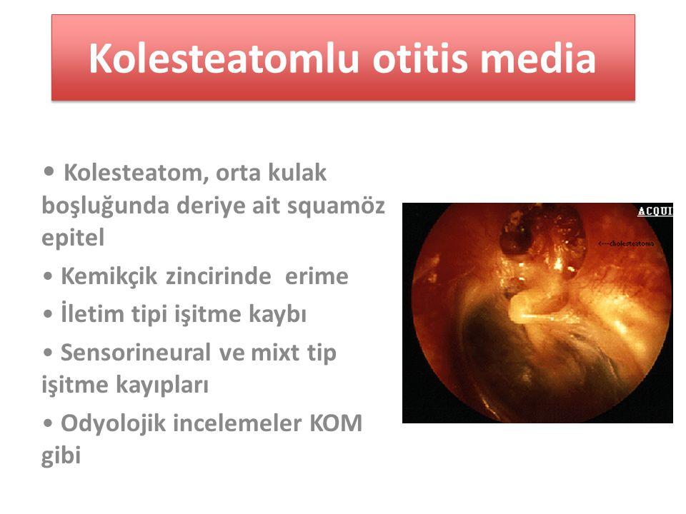 Kolesteatomlu otitis media Kolesteatom, orta kulak boşluğunda deriye ait squamöz epitel Kemikçik zincirinde erime İletim tipi işitme kaybı Sensorineural ve mixt tip işitme kayıpları Odyolojik incelemeler KOM gibi