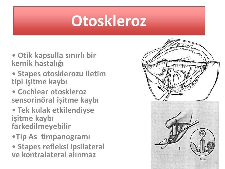 Otoskleroz Otik kapsulla sınırlı bir kemik hastalığı Stapes otosklerozu iletim tipi işitme kaybı Cochlear otoskleroz sensorinöral işitme kaybı Tek kulak etkilendiyse işitme kaybı farkedilmeyebilir Tip As timpanogramı Stapes refleksi ipsilateral ve kontralateral alınmaz