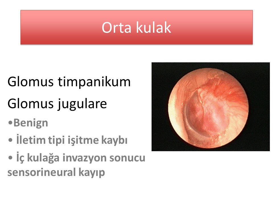 Orta kulak Glomus timpanikum Glomus jugulare Benign İletim tipi işitme kaybı İç kulağa invazyon sonucu sensorineural kayıp