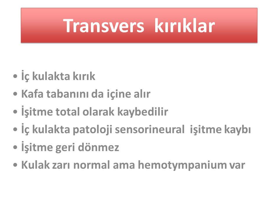 Transvers kırıklar İç kulakta kırık Kafa tabanını da içine alır İşitme total olarak kaybedilir İç kulakta patoloji sensorineural işitme kaybı İşitme geri dönmez Kulak zarı normal ama hemotympanium var