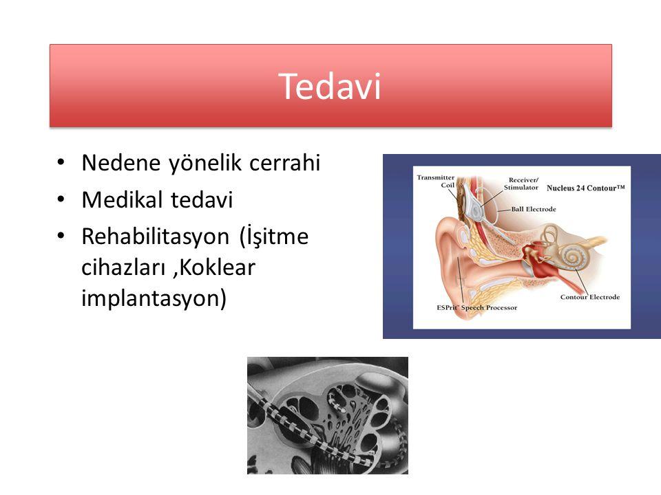 Tedavi Nedene yönelik cerrahi Medikal tedavi Rehabilitasyon (İşitme cihazları,Koklear implantasyon)