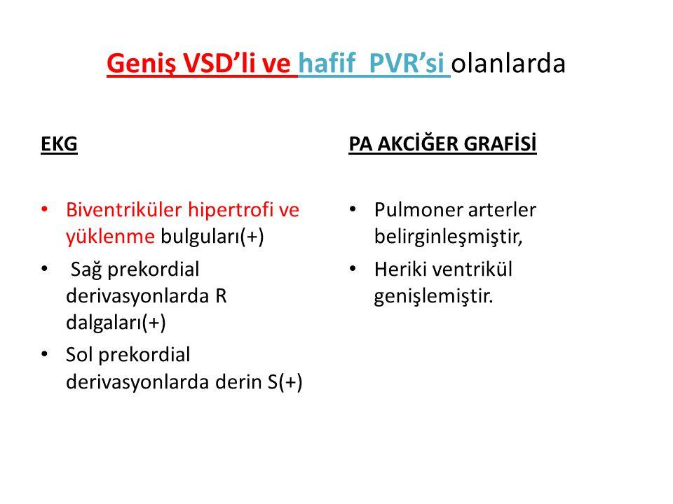 Geniş VSD'li ve hafif PVR'si olanlarda EKG Biventriküler hipertrofi ve yüklenme bulguları(+) Sağ prekordial derivasyonlarda R dalgaları(+) Sol prekord