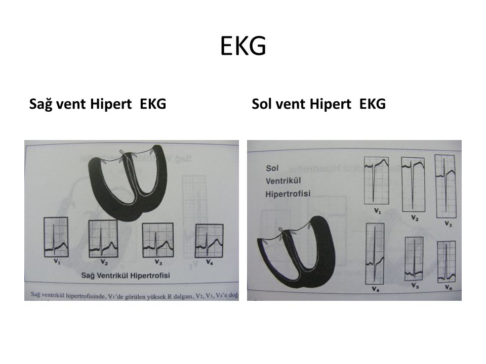 EKG Sağ vent Hipert EKGSol vent Hipert EKG