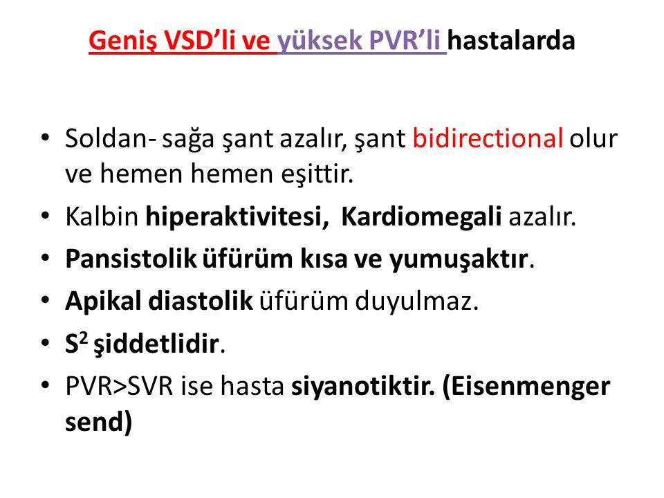 Geniş VSD'li ve yüksek PVR'li hastalarda Soldan- sağa şant azalır, şant bidirectional olur ve hemen hemen eşittir. Kalbin hiperaktivitesi, Kardiomegal