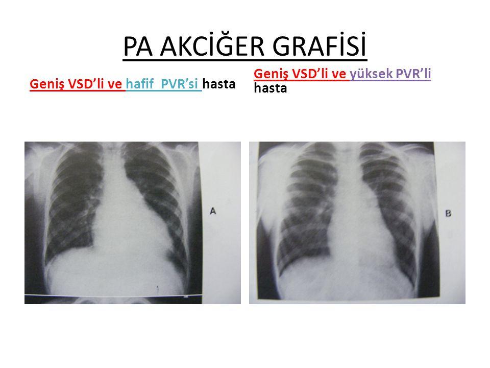 PA AKCİĞER GRAFİSİ Geniş VSD'li ve hafif PVR'si hasta Geniş VSD'li ve yüksek PVR'li hasta